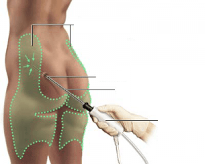 Liposuccion laser Tunisie