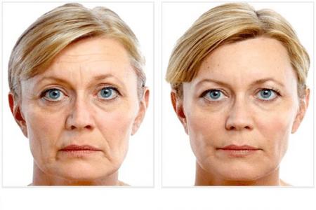 Lipofilling visage avant aprés