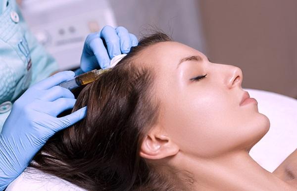 Tout ce qu'il faut savoir sur la perte de cheveux et ses solutions