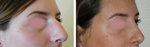 Chirurgie esthétique nez Tunisie