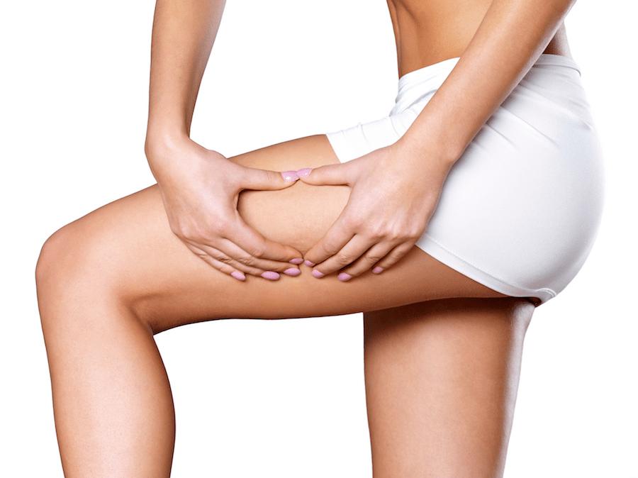 Top 3 des mythes et réalités sur la cellulite