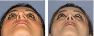 correction de la déviation de la cloison nasale