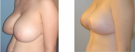 Chirurgie reduction mammaire Tunisie