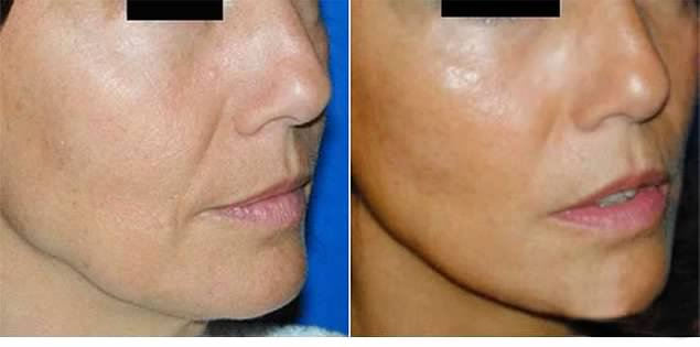 Lipofilling visage avant apres