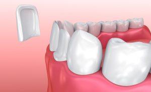 Pose de facette dentaire