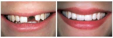 Implant dentaire Tunisie avant apres