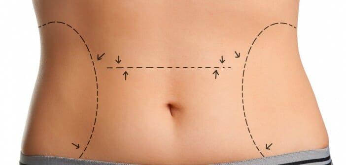 Réparer la peau après une chirurgie d'obésité