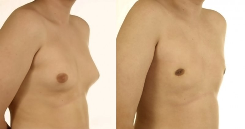 Gynecomastie avant apres