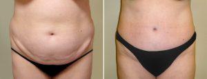 Abdominoplastie avant apres