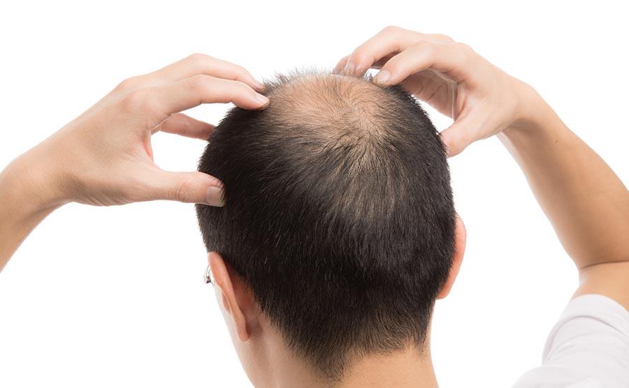 Les injections de PRP pour combattre la perte de cheveux