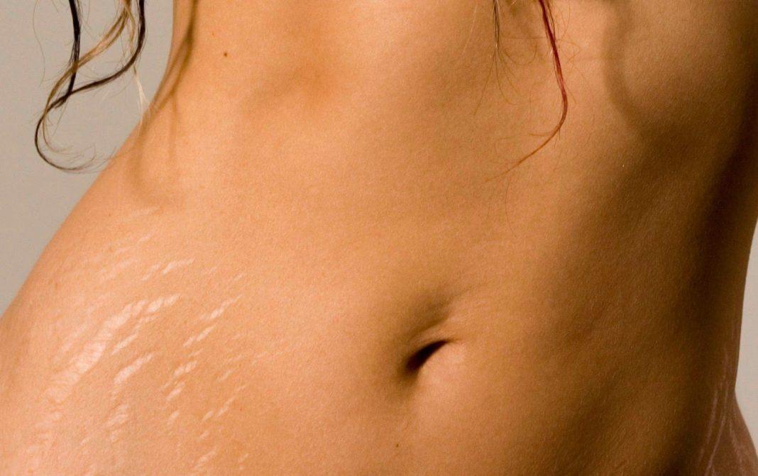Une abdominoplastie peut-elle se débarrasser des vergetures ?
