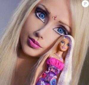 Barbie chirurgie esthetique